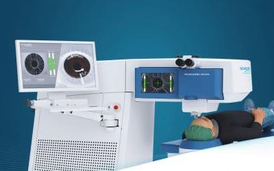 SCHWIND ATOS lasertechnologie